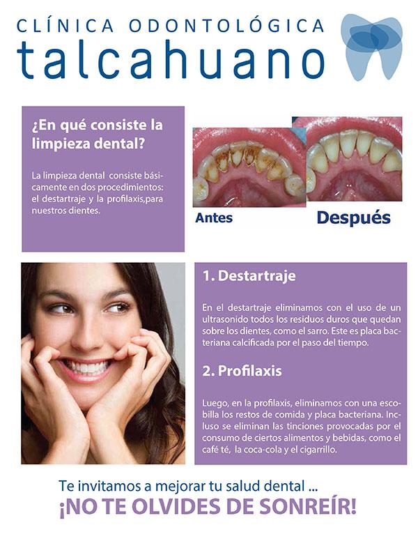 Que es la limpieza dental